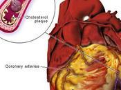 Quel votre cardiovasculaire?