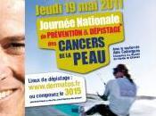 Journée détection cancers peau