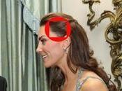 Kate Middleton, c'est quoi cette cicatrice