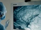 Kinect comme outil télémédecine pour améliorer secteur santé