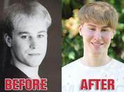 dépense 000$ pour ressembler Justin Bieber