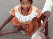 ALERTE INFO. Santé: maladie causée vaccin polio deux fois plus meurtrière