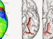 Thérapie cognitive destinée personnes atteintes troubles spectre schizophrénique recevant traitement pharmacologique antipsychotique pour pathologies: essai simple aveugle, randomisé contrôlé