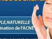 L'acné quoi faire