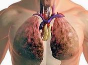 Curcumine contre mucoviscidose