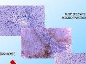 #thelancetoncology #carcinomehépatocellulaire #ramucirumab #sorafenib Ramucirumab versus placebo comme traitement deuxième ligne suivant première intention avec sorafenib (REACH) chez patients atteints carcinome hépatocellul...