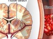 AVC: perfusion intraveineuse d'acide urique pour limiter dégâts Stroke