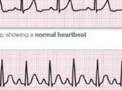 Deuil arythmie cardiaque: chagrin peut faire flancher cœoeur