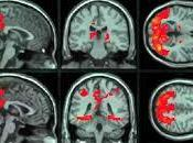neurosciences revisitent storytelling (1/2)