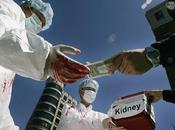 Vendez organes pour arrondir fins mois