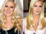 Heidi Montag subi opérations chirurgie esthétique journée