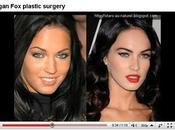 Megan chirurgie esthétique (vidéo)