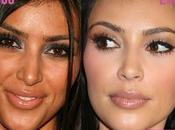 Kardashian chirurgie esthétique
