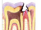 Dent dévitalisée régénérer pulpe nerf dentaire pour préserver vitalité
