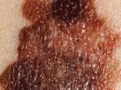 Cancer peau comment reconnaître mélanome malin
