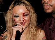 Concert. Tila Tequila bombardée divers projectiles durant concert sort blessée Vidéo