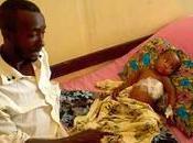 Somalie blessés guerre toujours plus nombreux dans hôpitaux Mogadiscio