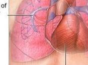 SPRYCEL® (dasatinib): L'Afssaps alerte risque d'hypertension artérielle pulmonaire Afssaps