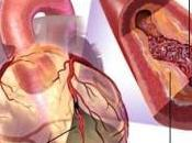 Antécédent crise cardiaque? Alors, gare anti-inflammatoires Circulation