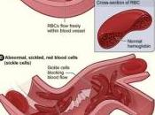 DRÉPANOCYTOSE chez BÉBÉS succès l'hydroxycarbamide Lancet