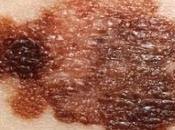 MÉLANOME: bêta-bloquants pour cancer peau? Cancer, Epidemiology, Biomarkers Prevention