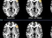 JEUX VIDEO violents, effets neurologiques négatifs prolongés Radiological Society North America.