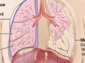 AMIANTE: mésothéliome devient maladie déclaration obligatoire InVS