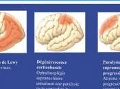 ALZHEIMER: protéine révèle risque tauopathie Journal Alzheimer Disease