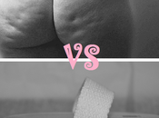 cellulite: gant anti-capitons: flop?