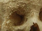 Sarcoma Cranii