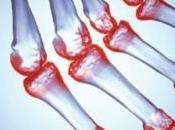 POLYARTHRITE RHUMATOÏDE: L'obésité, cause majeure risque chez femmes Arthritis Care Research