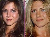 Jennifer Aniston chirurgie esthétique