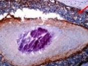 CANCER SEIN: test pour prédire propagation Clinical Cancer Research