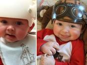 artiste redonne sourire bébés transformant leurs casques médicaux véritables oeuvres d'art