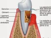 complications dents gencives