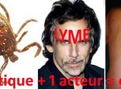 Maladie Lyme Tique-tac monstrueux