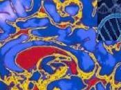 Autisme trop grand nombre connexions dans cerveau