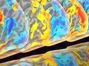 Maladie d'Alzheimer: nouveau cancer