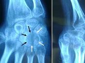 L'hémangiome intra-osseux carpe, entité exceptionnelle