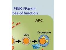 Parkinson L'hypothèse d'une maladie auto-immune