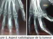 Ostéome ostéoïde phalange proximale. forme clinique rare localisation.