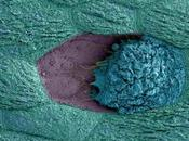 MICROBIOTE vaginal Pourquoi l'infection urinaire suit souvent rapports sexuels PLOS Pathogens