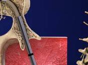 Intracept nouveau traitement pour éliminer lombalgie chronique