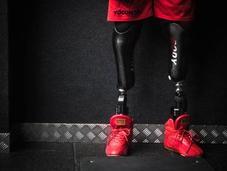 Amputé deux jambes, Edgard John-Augustin devenu Bionic Body