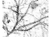 DOULEUR NEUROPATHIQUE molécule bloque signaux nerveux