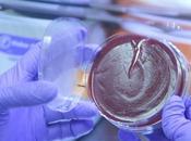 MICROBIOTE manipulation pourrait suffire bloquer tumeurs